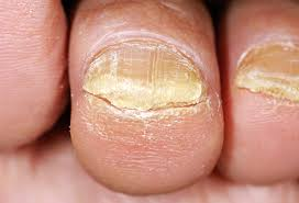 fingers, fungus