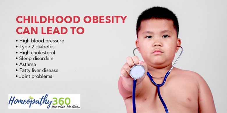 Childhood Obesity – Symptoms and Causes and Treatment with Homeopathy
